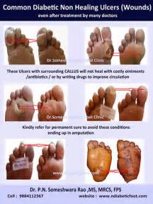does heel ulcers heal on diabetics picture 19