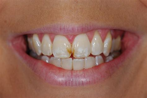 decaying teeth pictures picture 10