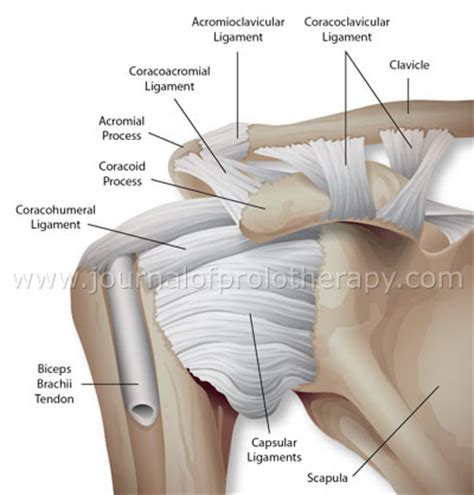 arthritis of the ac joint of the shoulder picture 8