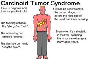 neuroendocrine tumor of gastrointestinal tract ppt. picture 9