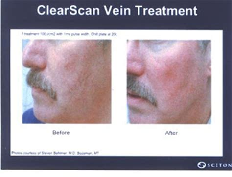 cosmetic skin care vein removal virginia picture 4