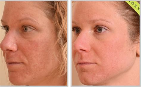 laser for skin treatment picture 2