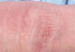 skin atrophy picture 1
