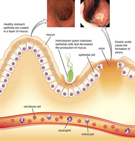what test are used for bacterial infections picture 4