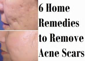 acne home remedy picture 18