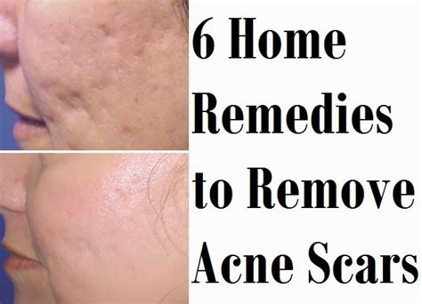 home remedies for acne scarring picture 6