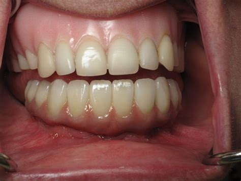 cost of dentures and pulling teeth picture 2