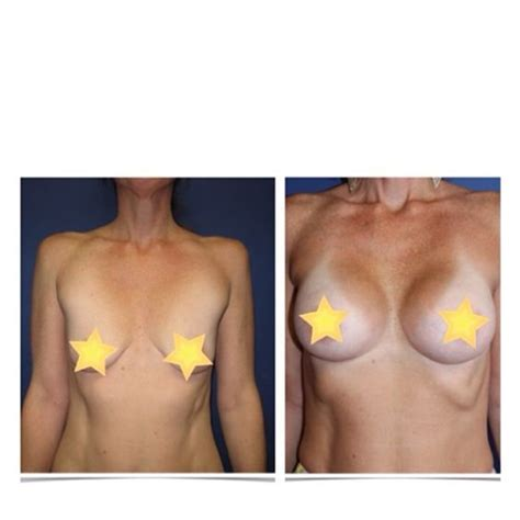 beverly hills breast augmentation picture 1