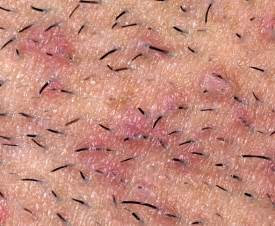 people with herpes date line picture 7