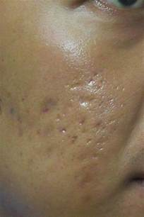 epidermx heals pitted scars? picture 11