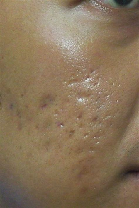 cover acne pit scar skin picture 10