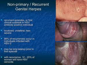 how is genital herpes contracted picture 10