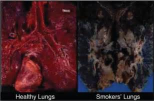 smoke damaged lungs picture 1