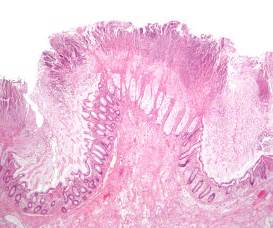 diet c difficile colitis picture 3