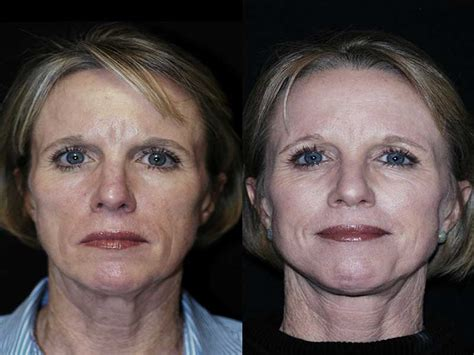 is sculptra good for acne scaring picture 9