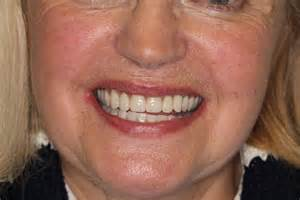 cost of dentures and pulling h picture 14