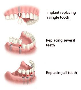 can weak spots in teeth be fixed picture 14