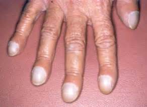 diamond shape skin rash picture 6