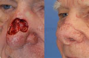 skin cancer on face picture 3