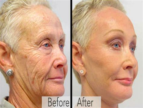 dr oz wrinkle cream to look 15-20 yr younger picture 2