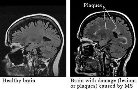 multiple sclerosis h pain picture 17