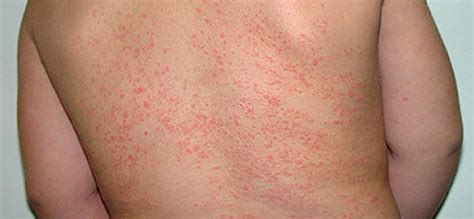 skin rashes on babies september 2015 picture 5