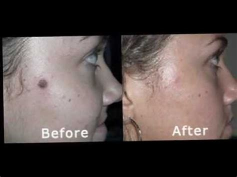 warts on face removal picture 6