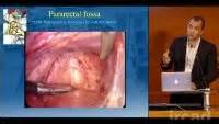 do uterine polyps make colon polyps more likely picture 5