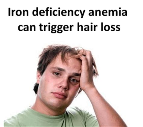 anemia causing hair loss picture 6