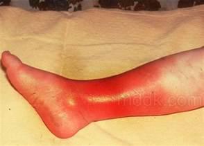 cellulitees picture 1