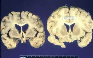 bacterial meningitis hole in brain picture 5
