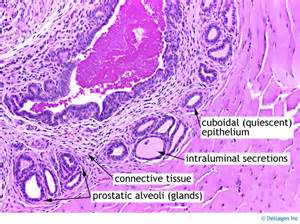 What is a prostate gland picture 13
