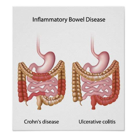 inflammatory bowel condition picture 2