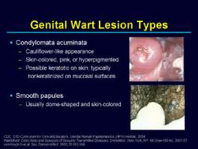 pictures of differnt types of female genital warts picture 5