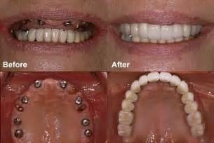 false teeth permenant picture 5