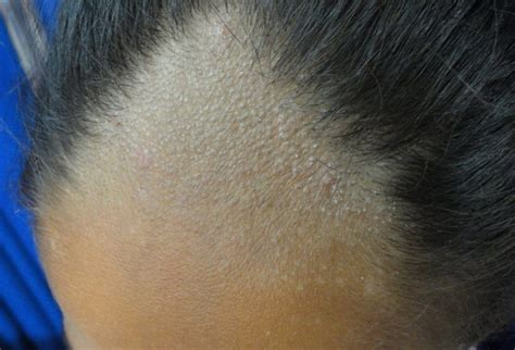 bacterial menigitis and hair loss picture 2