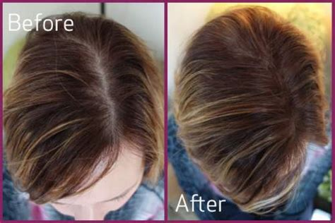 does revilus hair supplement helps in hair regrow picture 10