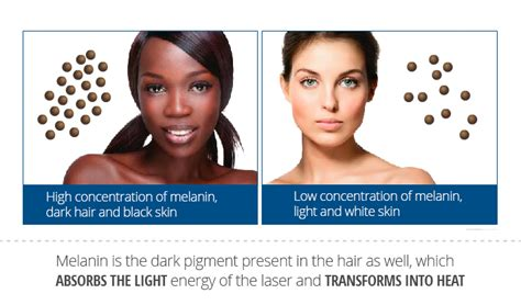 remove melanin from skin picture 7
