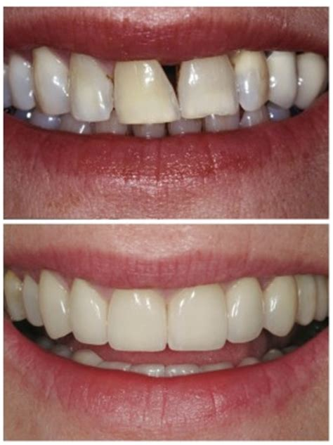 fixing gap in teeth picture 10