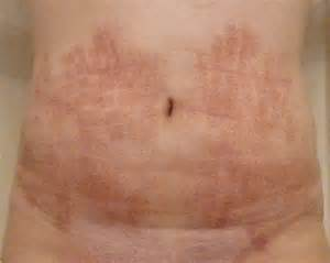 hair removal cream on stomach picture 2