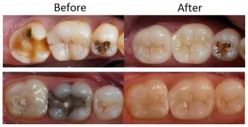 crowns for teeth picture 3