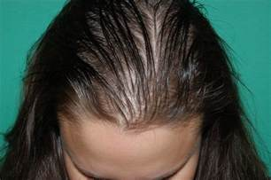 cure for hair loss in women picture 7