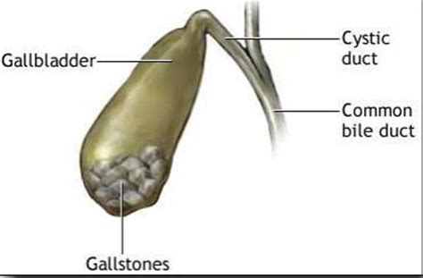 gall bladder gall stones picture 9