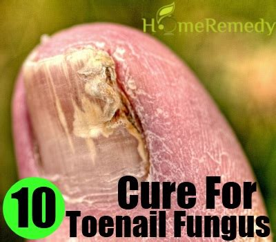 cure for yellow toe nail fungus picture 13