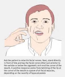 hypo parathyroidism picture 5