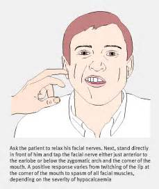 hypoparathyroidism hyperexcitability picture 2