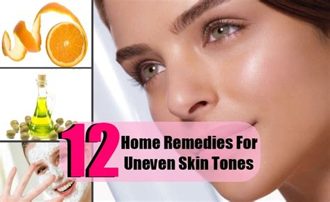 household things that removeu uneven skin tone picture 4