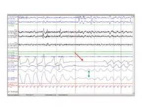 protocol for scoring hypopneas in polysomnography sleep study picture 1