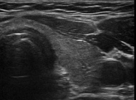 echogenic foci thyroid picture 7