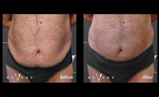 gentle slim fat removal does it work picture 6